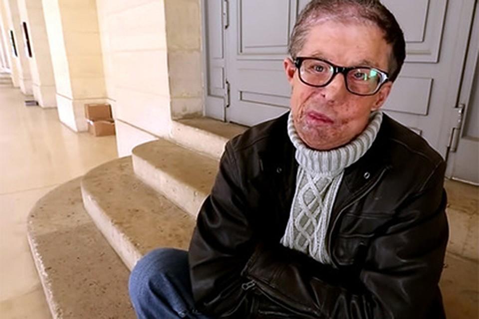 «Мне снова 22»: мужчина с два раза пересаженным лицом дал интервью
