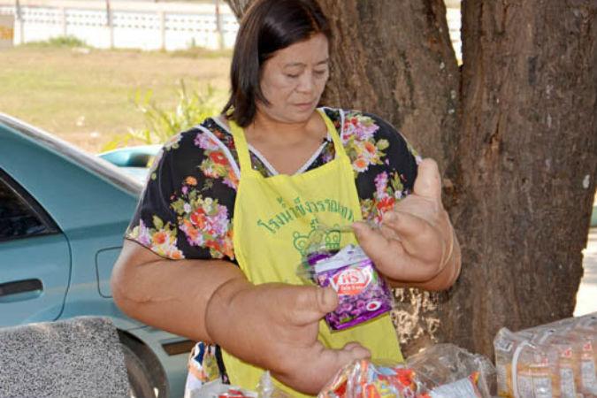 Жительница Тайланда неделями не выходила из дома из-за своего недуга.