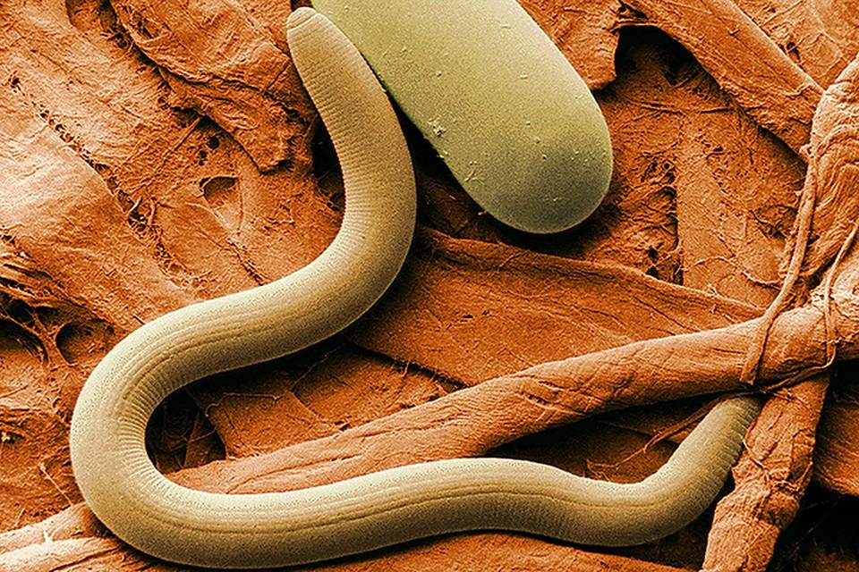 Повышение содержания некоторых белков замедляет старение миниатюрных круглых червей — нематод