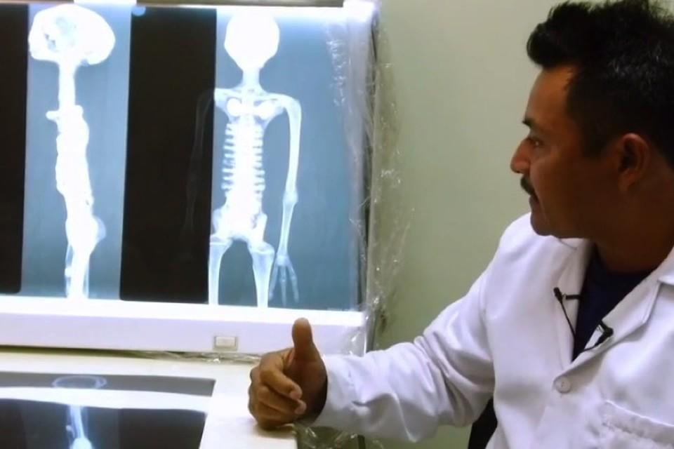Рентген мумий выявил их нечеловеческие особенности.