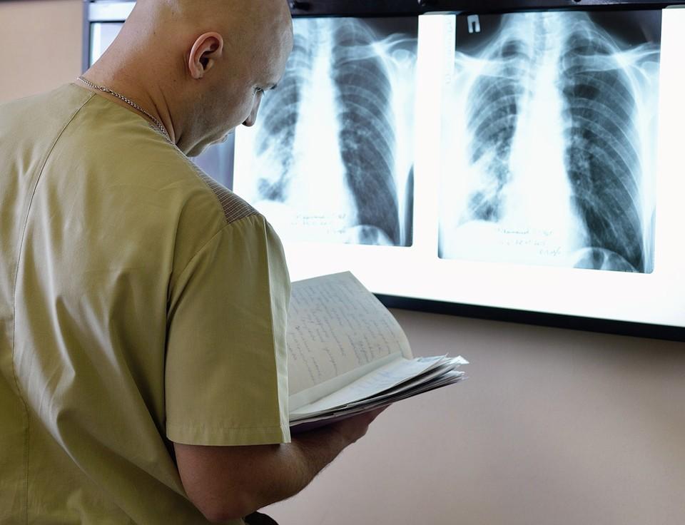 Рак легкого считается самой прожорливой и смертельно опасной локализацией