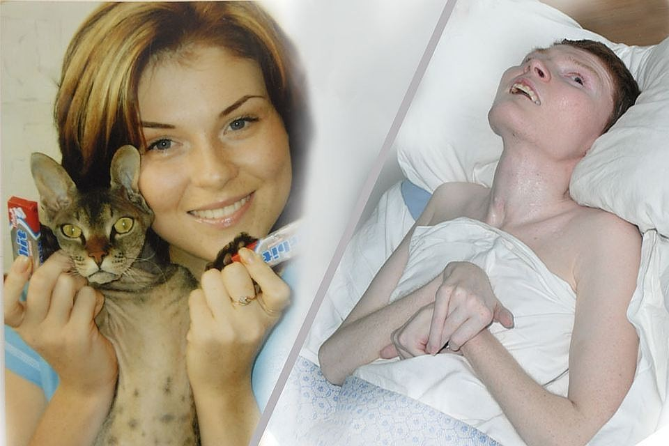 Ирина до трагедии и после. Фото из архива