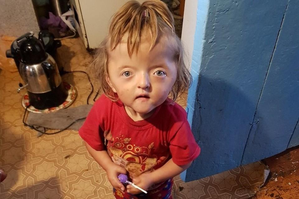 Маленькая Софья практически не ходит и не разговаривает из-за врожденных пороков