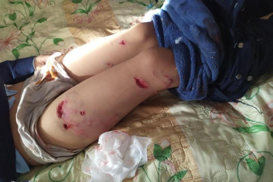 В мясо изорвали ноги и голову: свора собак растерзала 7-летнего мальчика в Бурятии