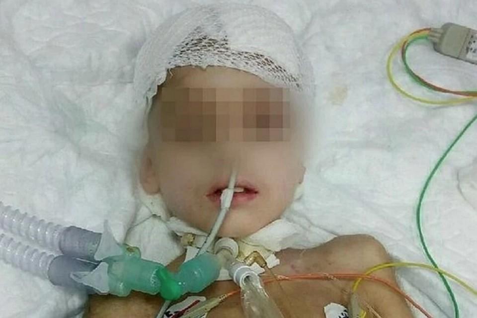В больнице у Егора несколько раз отказывали легкие. Фото: предоставлено родственниками мальчика