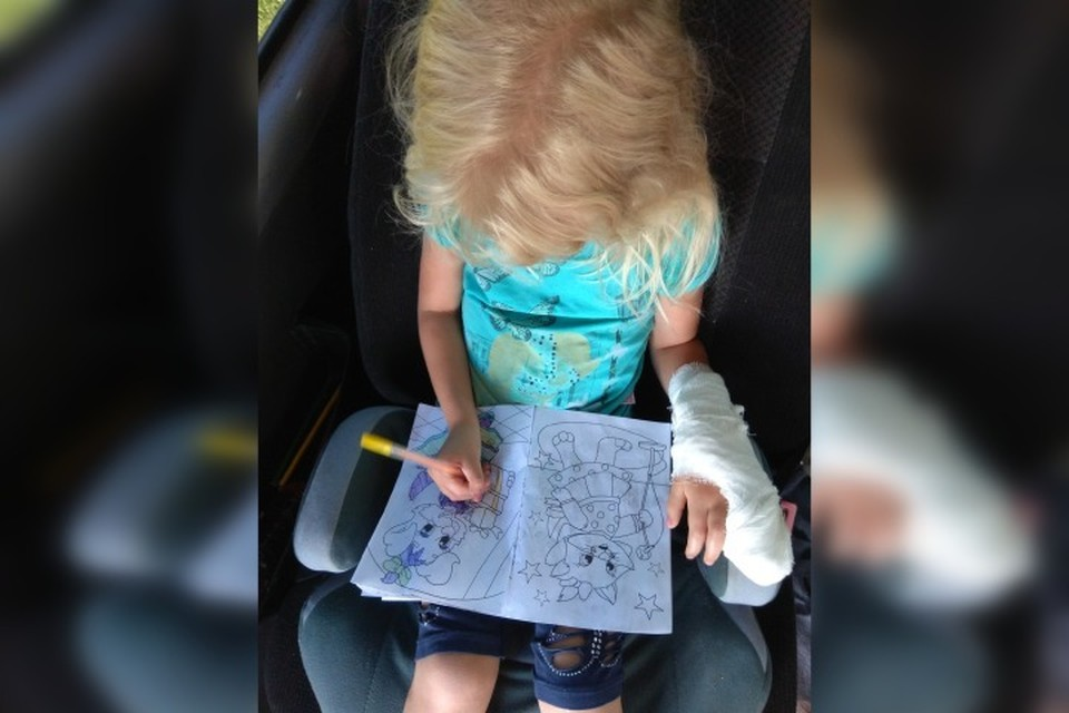 На руке у девочки прибинтован гипсовый лангет, чтобы пальцы не травмировались.Фото: семейный архив.