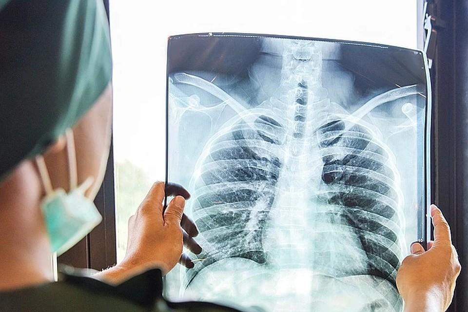 ВОЗ опасается эпидемии туберкулеза в Европе