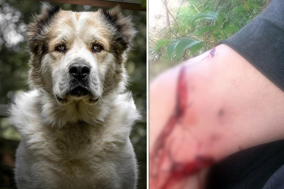 Алексей написал заявление в полицию. Но напавшую на мужчину собаку и её хозяев пока так и не нашли