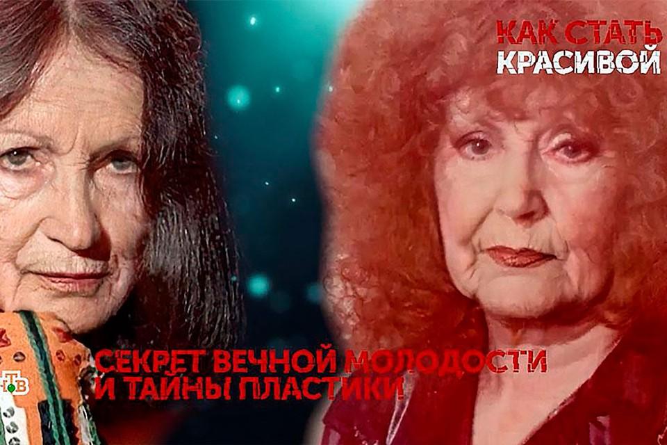 Хирург показал, как выглядят Пугачева и Ротару без пластики