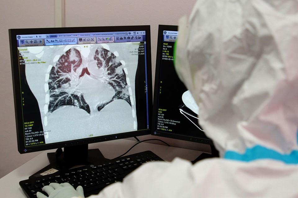 «До 20% поражения легких - выздоровеете полностью, более 50% - с последствиями»: патологоанатом рассказал о коварности коронавируса