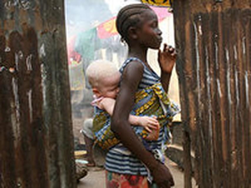 Негров альбиносов убивают