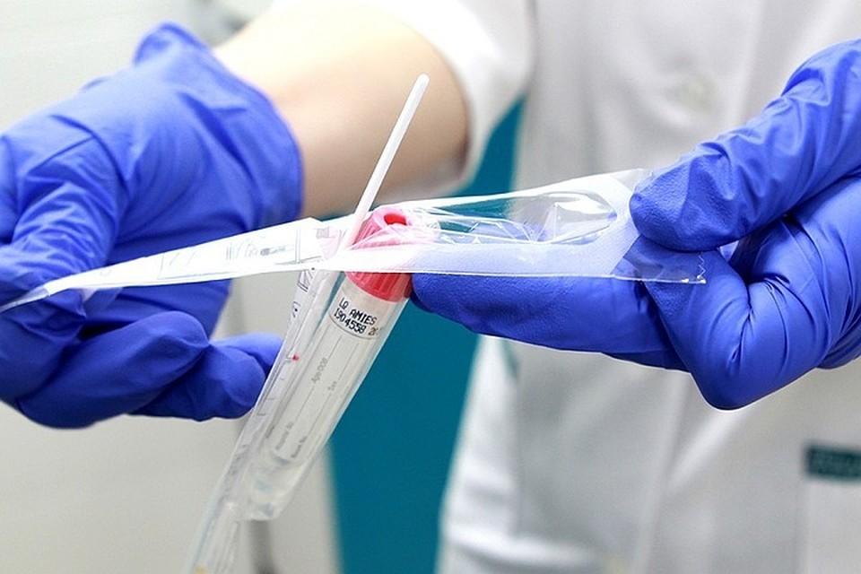 Иркутск и Усть-Илимск лидируют по числу новых случаев коронавируса 13 февраля.