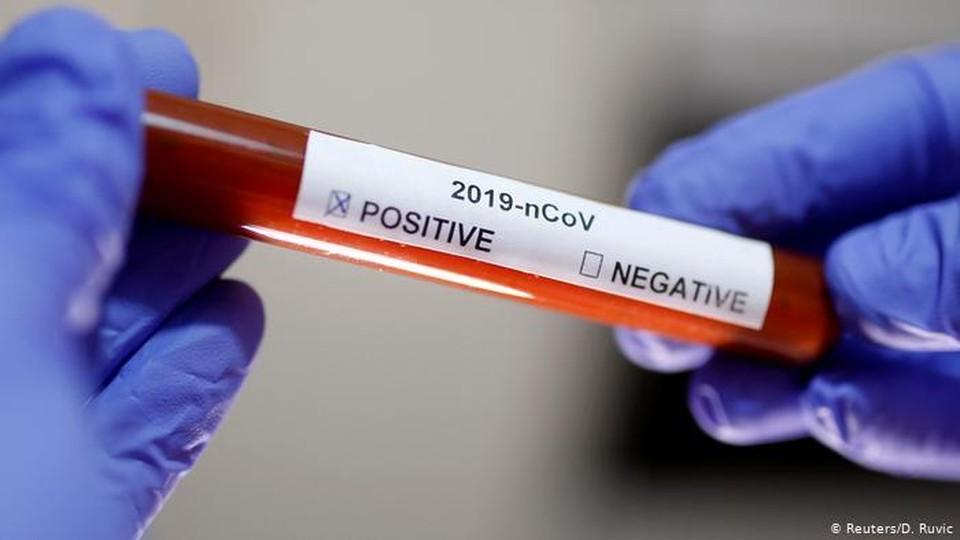 В Молдове стало меньше заболевших коронавирусом (Фото: REUTERS).