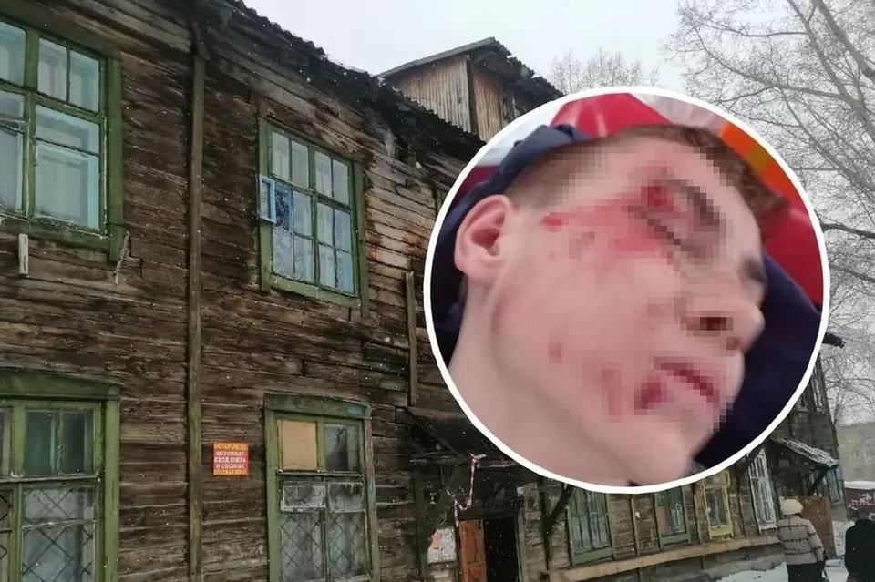 Глыба рухнула на парня с крыши дома. Фото: Анна ПАШАГИНА/предоставлено Екатериной.