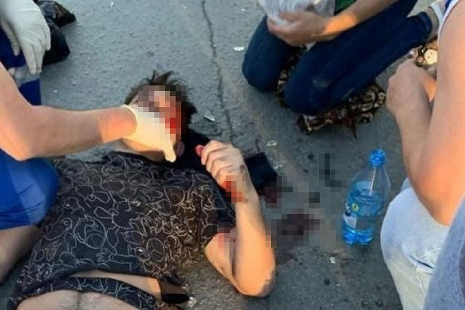 От удара парня отбросило под колеса еще одной машины. Он чудом выжил, но получил серьезные травмы. Фото: предоставлено Екатериной Арлюковой.