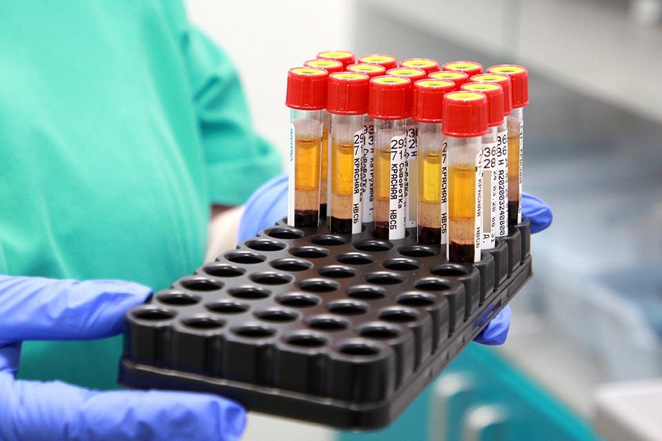 Количество случаев заражения коронавирусом в Иркутской области превысило 71 000