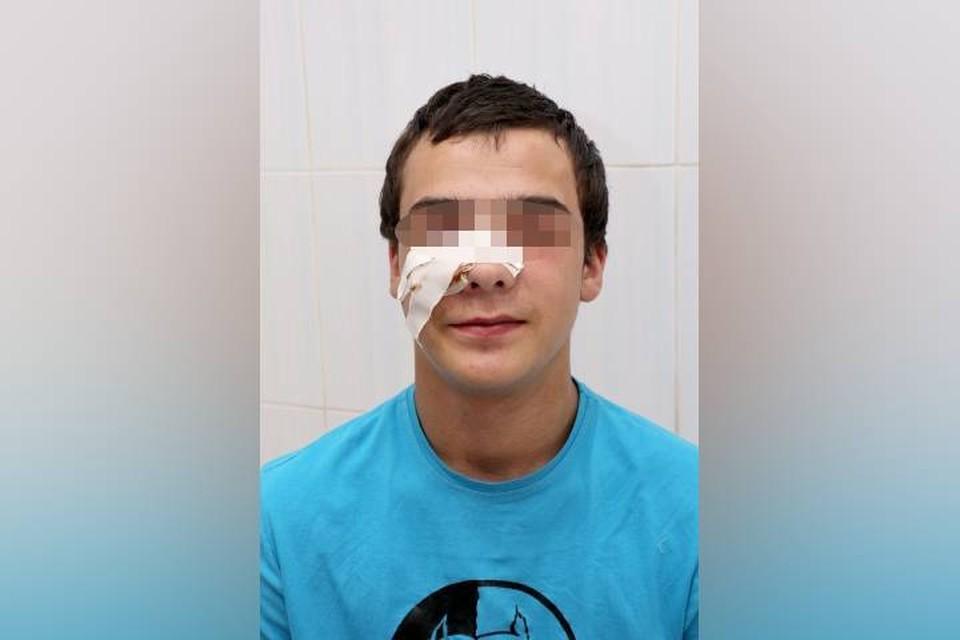 До мозга оставался миллиметр: в Иркутске врачи спасли подростка, которому щепка проткнула лицо. Фото: Ивано-Матренинская детская клиническая больница.