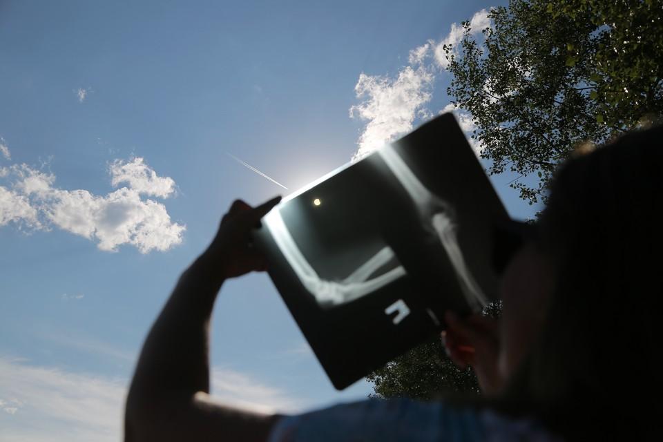 Смотреть на затмение можно через рентгеновский снимок