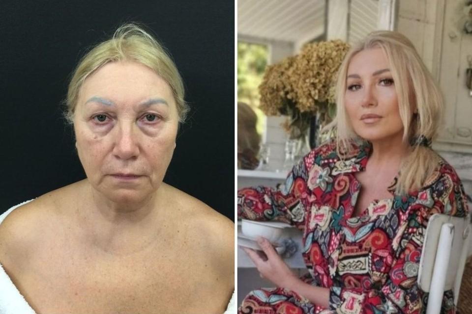 Марина Логинова до и после операции. Фото: Юлия Махновец/Алена Пятенок
