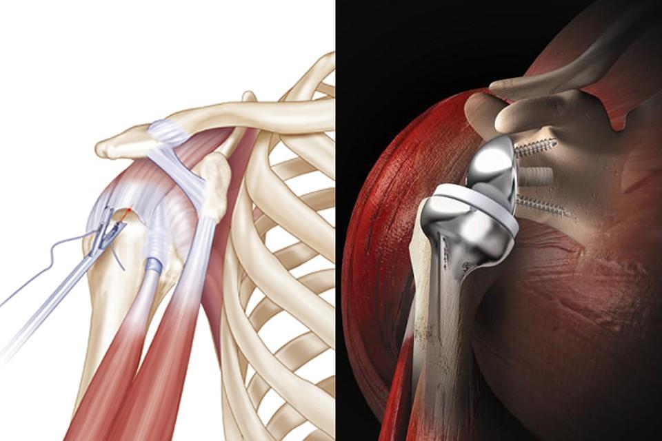 Импланты плечевого сустава в астрахани ядерно-магнитно-резонансный снимок сустава в бутово