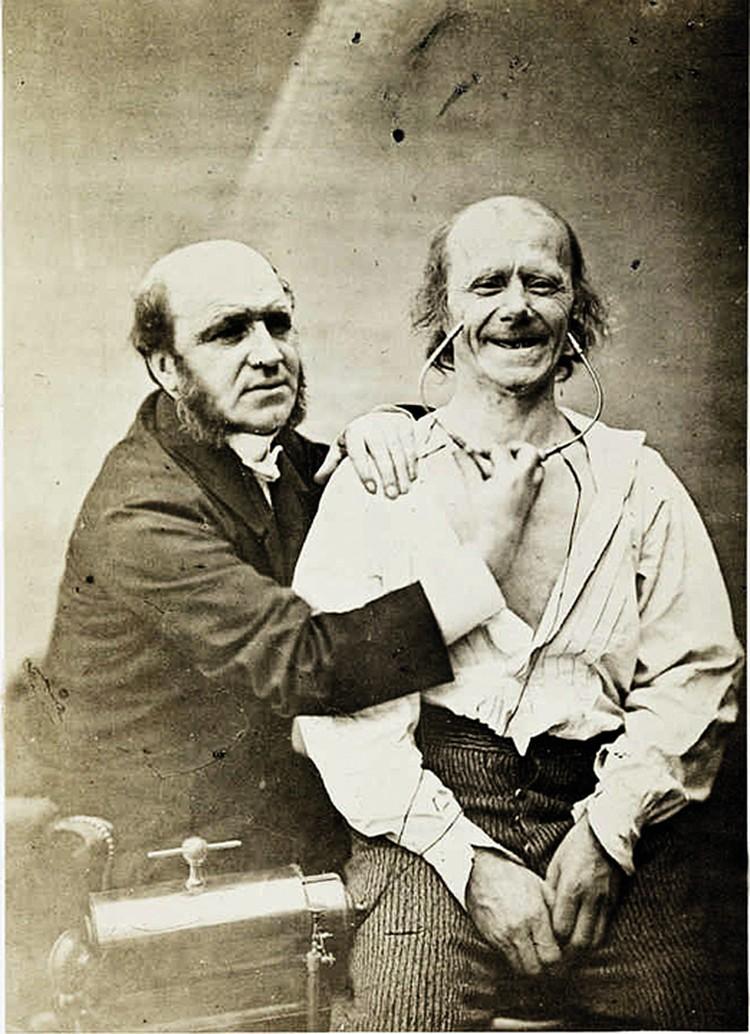 Гийом Дюшен (слева), стимулируя лицевые мышцы электротоком, раскрыл механизм появления улыбки.