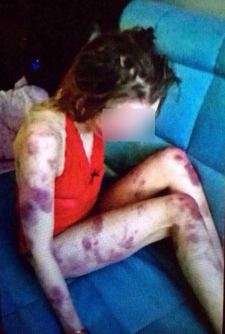 Избитая девушка скончалась в больнице. Фото: ПРЕДОСТАВЛЕНО ОЧЕВИДЦЕМ