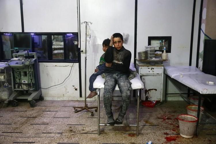 Среди раненых из-за обстрелов Дамаска и других городов провинции есть дети