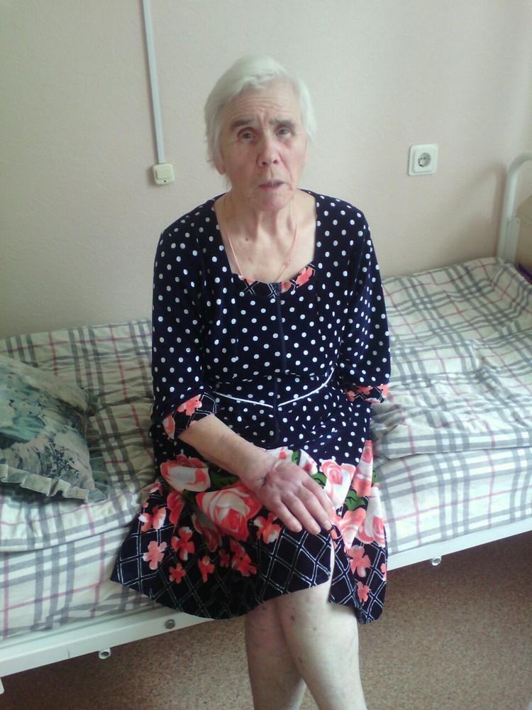 75-летней Антонине Погосовой пришлось ампутировать руку. ФОТО: соцсети