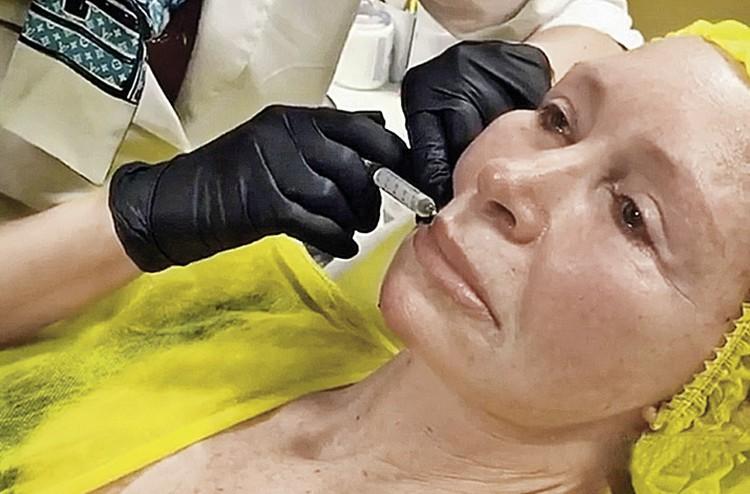 Хирурги подтянули актрисе овал лица и увеличили губы.