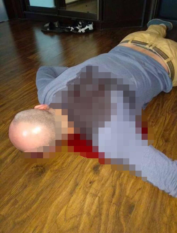 """В сети появилось фото убитого Аркадия Бабченко. Фото: Телеграм-канал """"НЕЗЫГАРЬ"""""""