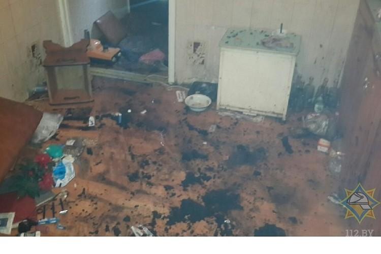 Причиной пожара стала неосторожность при курении. Фото: МЧС.