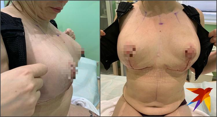Фото через сутки после операции в московской клинике.
