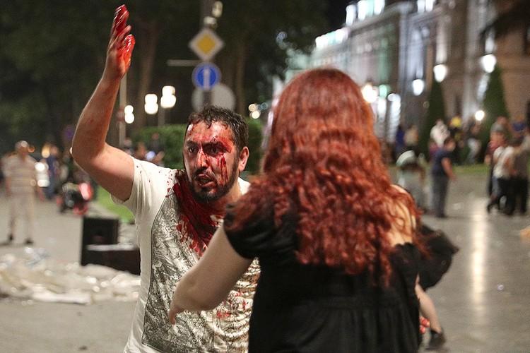 В ходе уличных беспорядков пострадали 240 человек.
