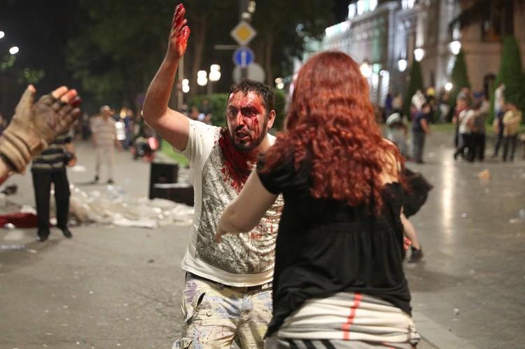 В столкновениях с полицией пострадали несколько десяткков человек