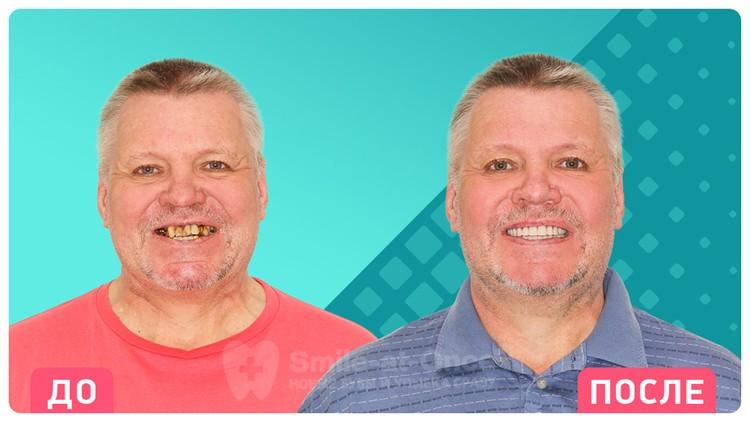 Так меняются пациенты стоматологии Smile-at-Once после проведения имплантации зубов.
