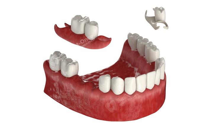 Съемный протез «бабочка» замещает всего пару зубов, но держится довольно плохо.