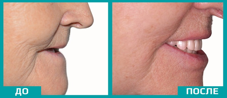 Восстановление зубов кардинально меняет внешность даже без пластической хирургии. Фото: Smile-at-Once