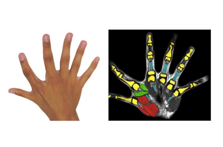 У людей появляется полноценный шестой палец - не то, что у лемуров.
