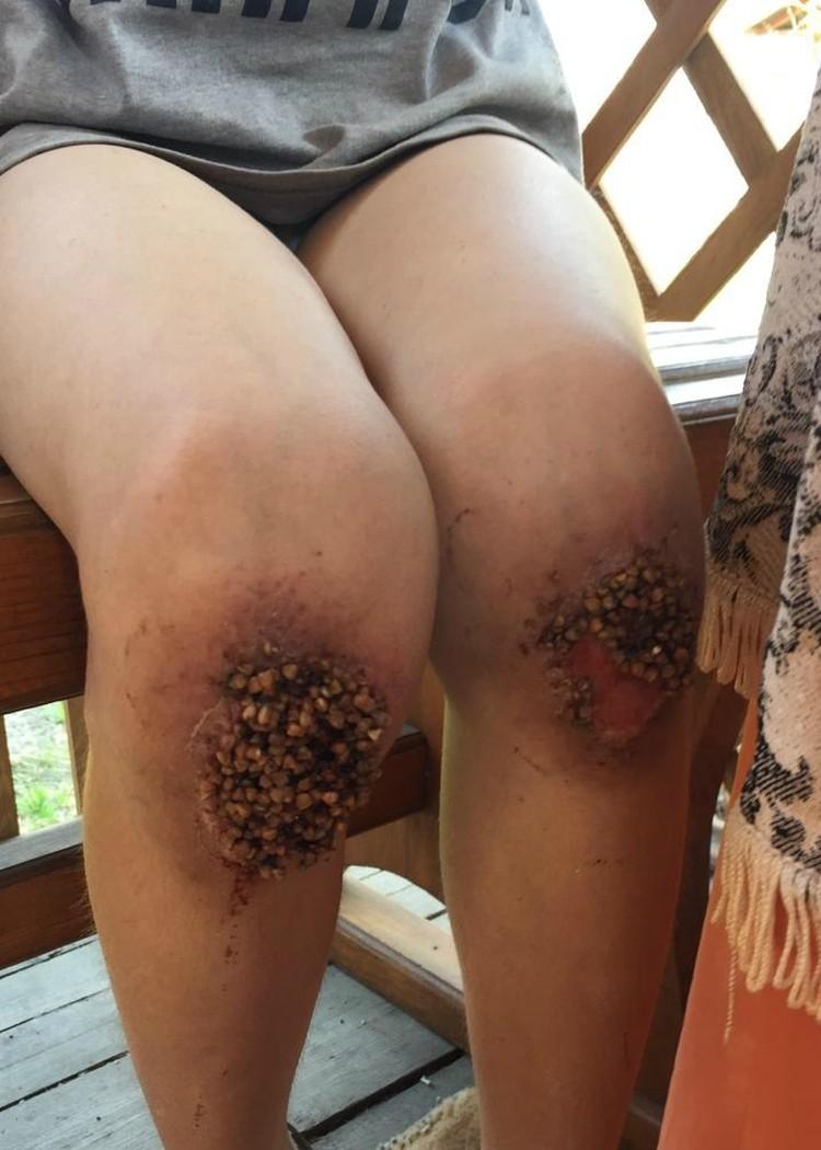 В результате «воспитания» отчимом гречку из Пашиных коленок доставали хирургическим путем. Фото: СУ СК РФ по Омской области