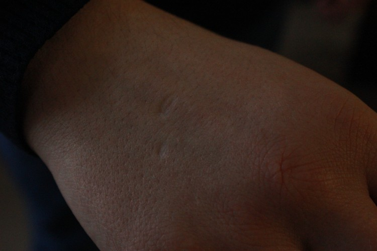 Шрамы на руке Павла Аброськина, которые появились вследствие агрессии протестующих на Майдане