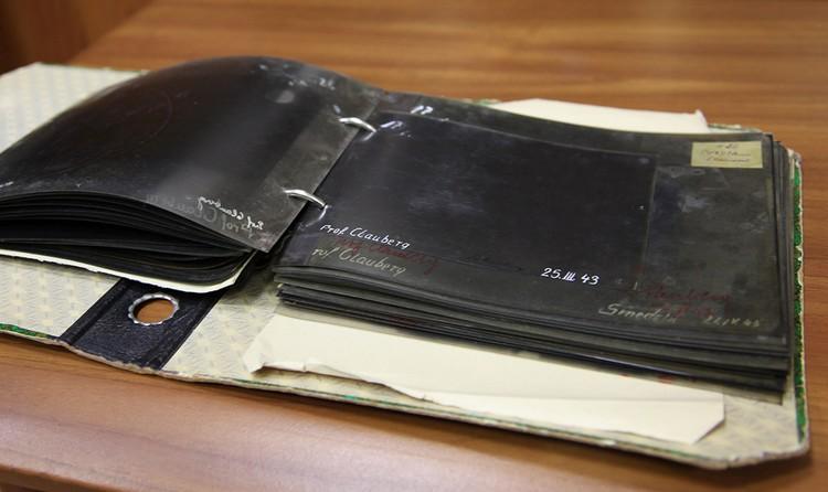 Рентгеновские снимки из дела Карла Клауберга. Фото из архива Министерства Госбезопасности СССР