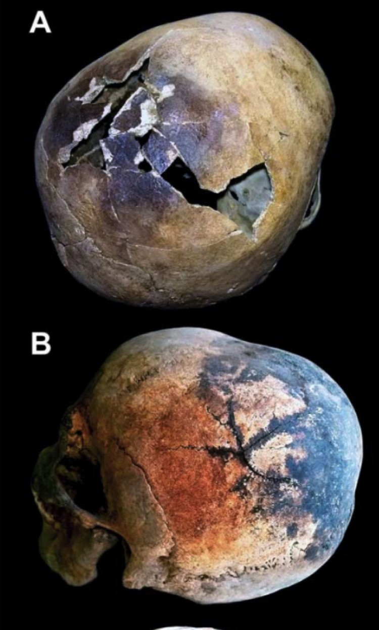 Лопнувшие черепа жертв извержения Везувия,