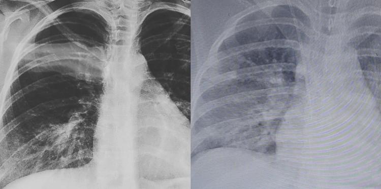 Слева ранняя стадия заболевания, справа - через три дня