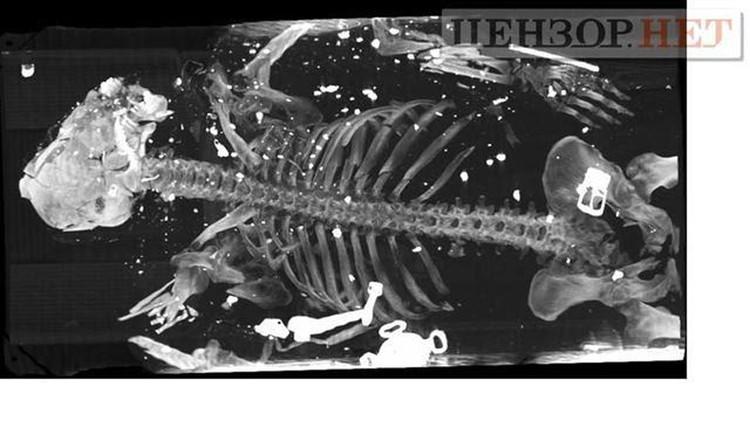 Со ссылкой на адвокатов публиковались рентгеновские снимки трупов членов экипажа, на которых видны страшные увечья от осколков