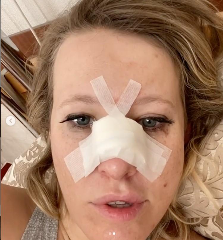 Многих смутил макияж Ксении и отсутствие синяков под глазами - а ведь она только что вышла из операционной. Фото: кадр видео.