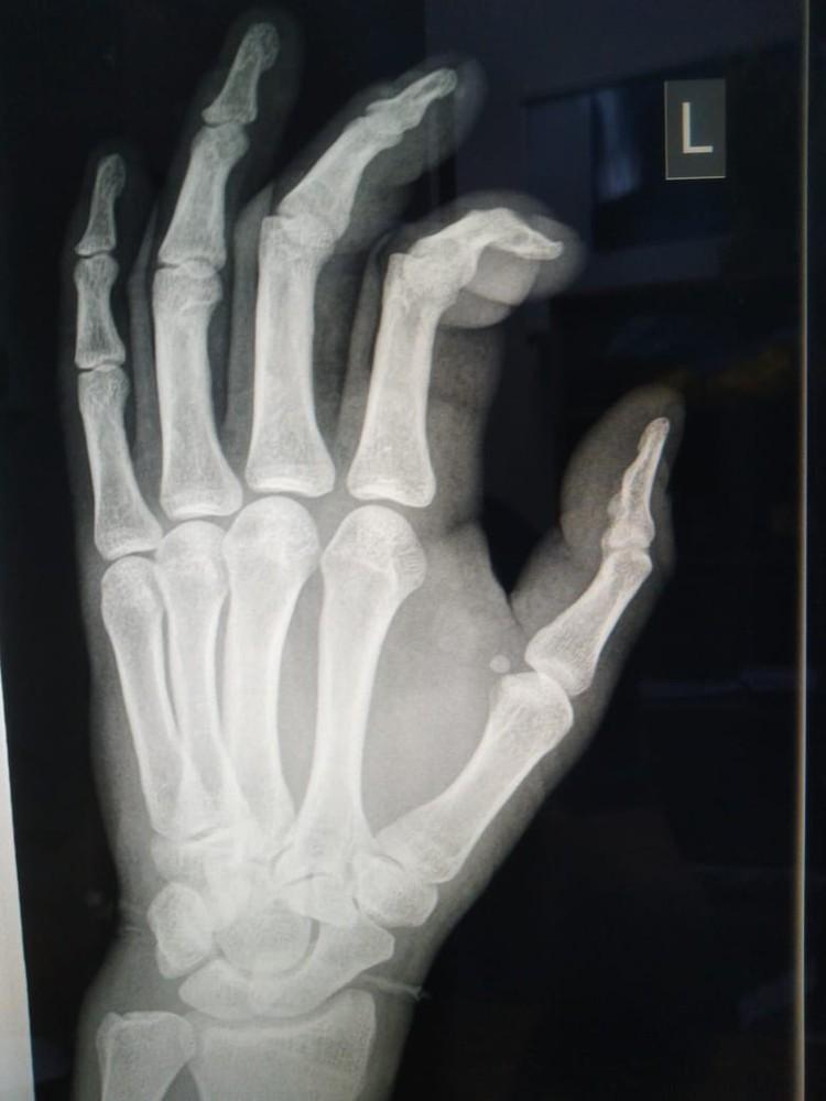 У Азамата серьезно пострадали руки