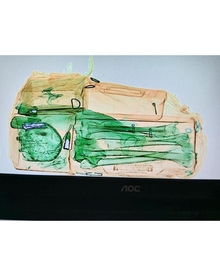 В сумке лежали человеческие кости. Фото: адвокат Екатерина КАЛЯДИНА.