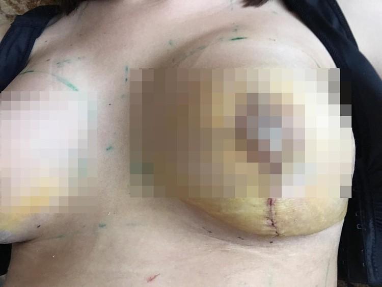 На груди сибирячки остались шрамы. Фото: личный архив.