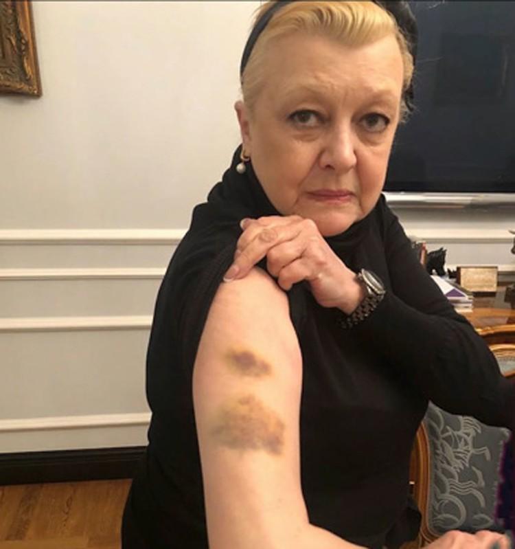 В подъезде собственного дома актриса Наталья Дрожжина была жестоко избита неизвестными