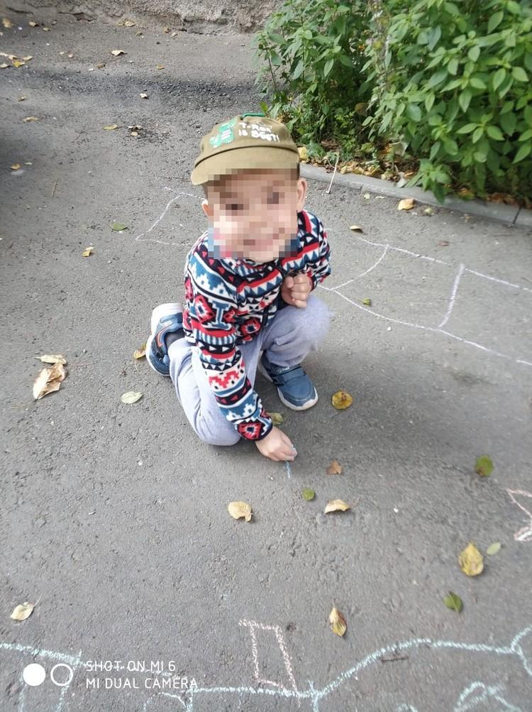 Ожог Коля получил на прогулке в детском саду. Фото: личный архив героя.